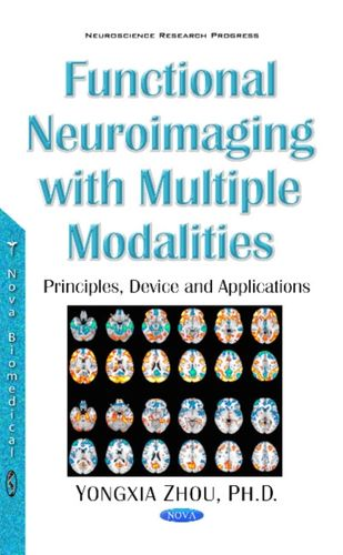 9781536103786 image Functional Neuroimaging with Multiple Modalities